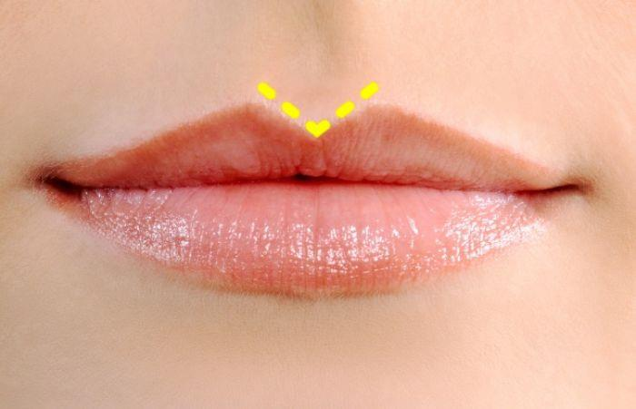 An upper lip with a sharp philtrum (Sharp Cupid's bow)