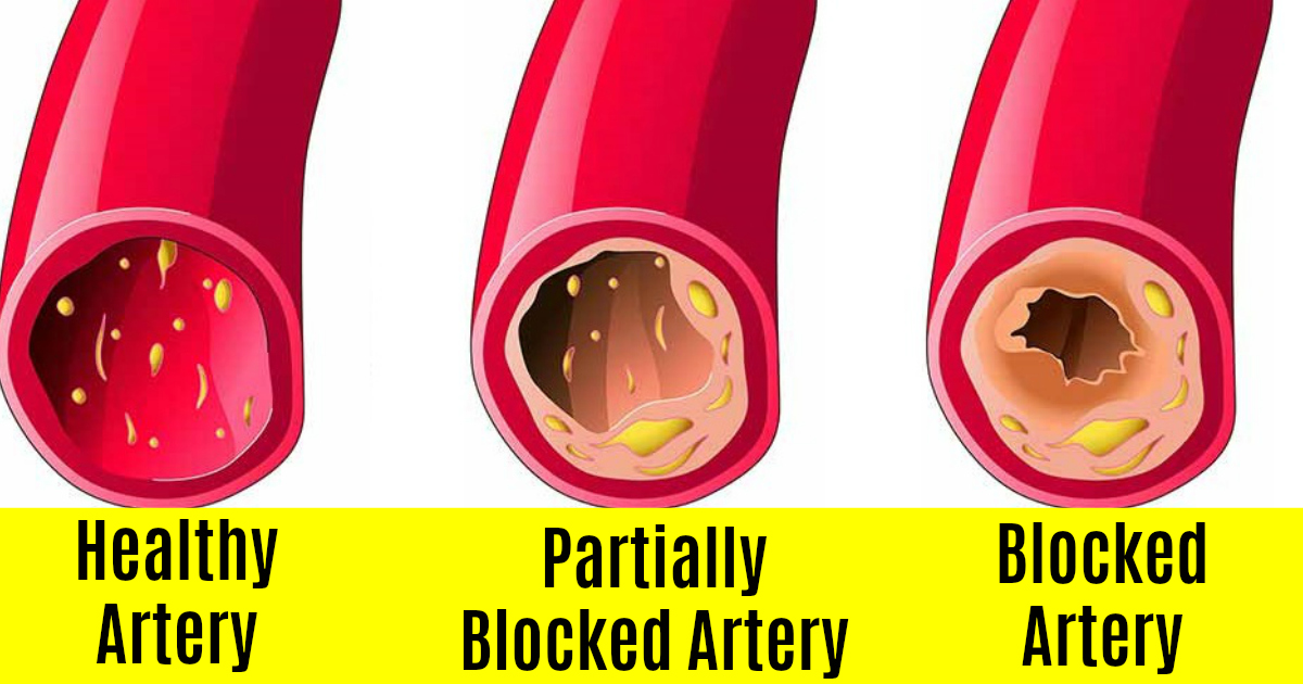 15 Foods You Should Eat To Clean Out Your Arteries and Keep Them Healthy
