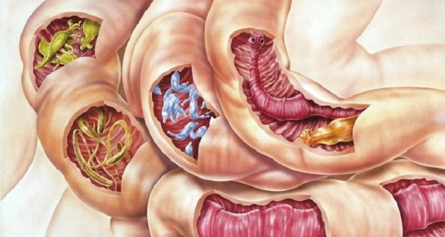 Parasites in intestines